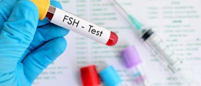 FSH Test
