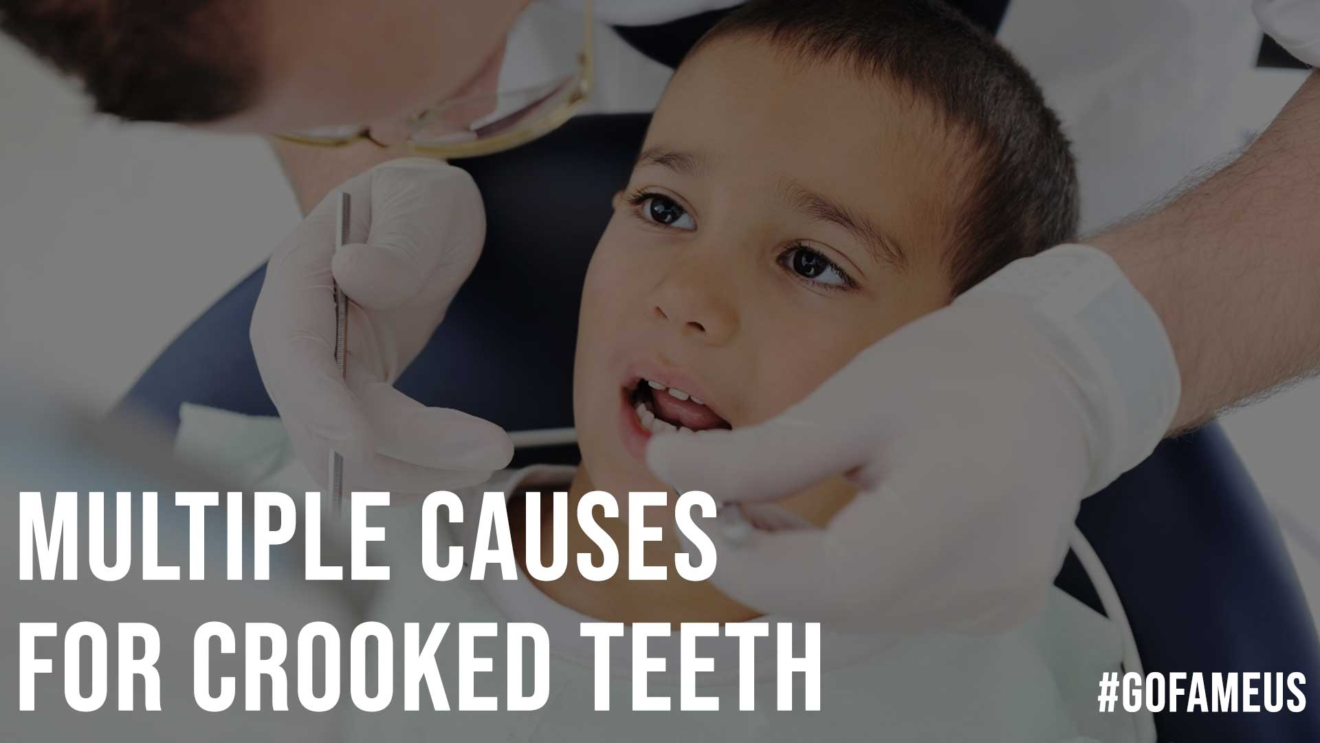 Multiple Causes For Crooked Teeth