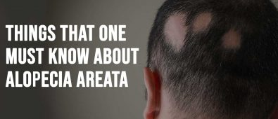 Things That One Must Know About Alopecia Areata