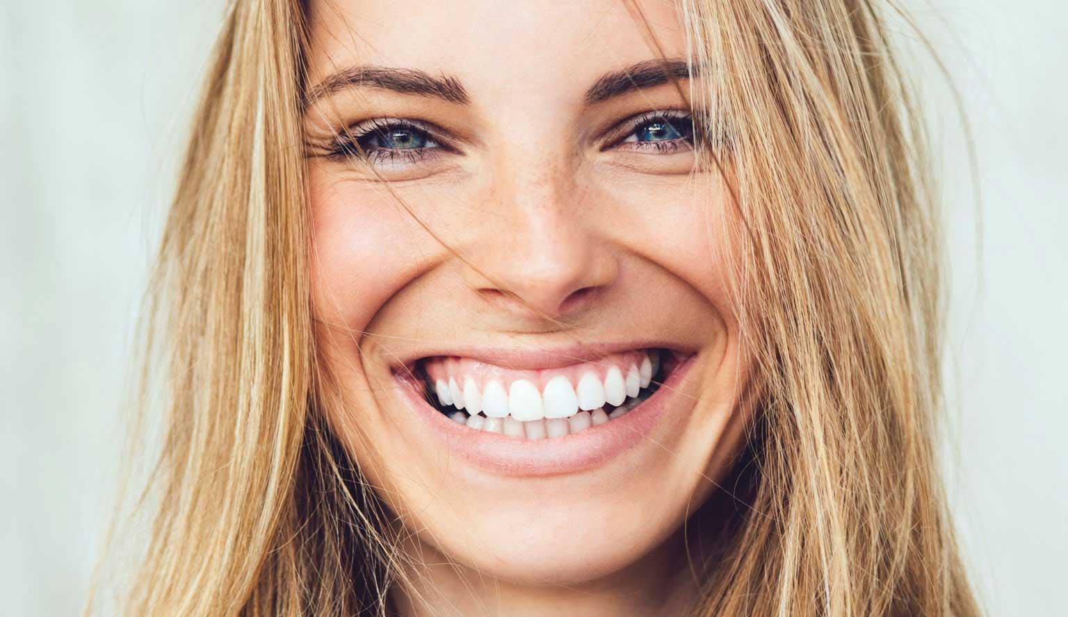 Dental Veneers Cosmetic appearance