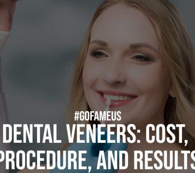 Dental Veneers Cost Procedure and Results